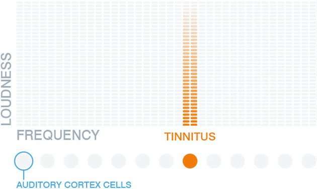 Tinnitracks: Deutsches Startup bekämpft Tinnitus per Smartphone-App